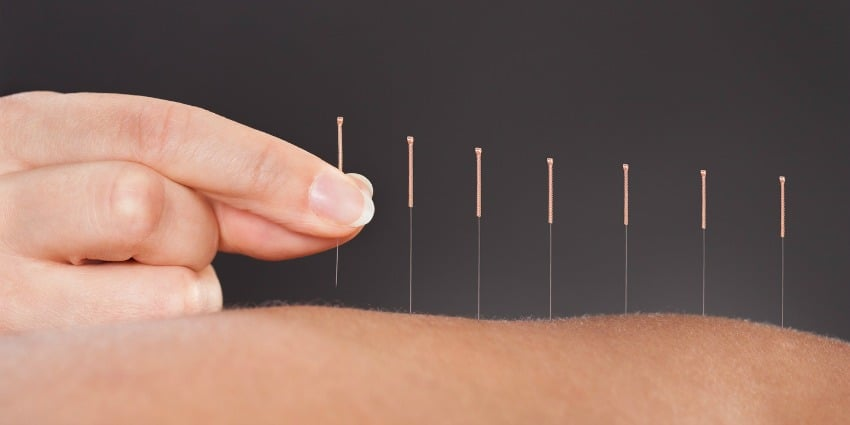 acupuncture concussion