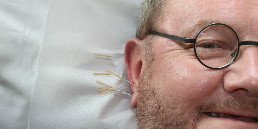 acupuncture anxiety depression