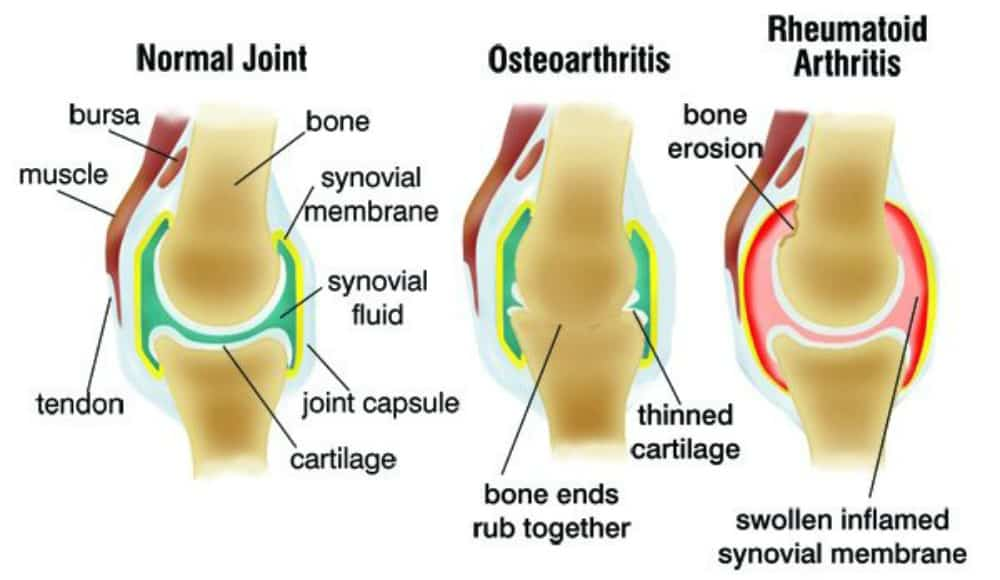 Arthritis - What is it and how can you treat it - Ottawa Holistic Wellness